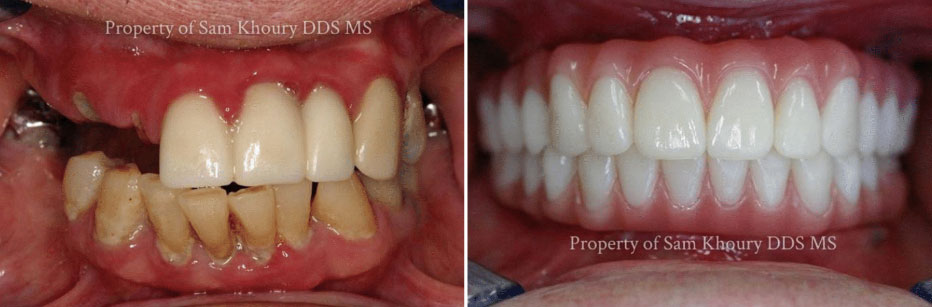 Dental Implants Media PA