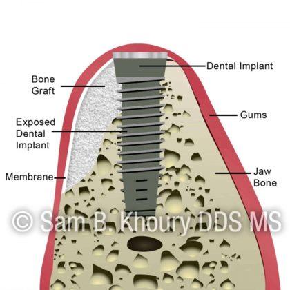 bone graft-chart